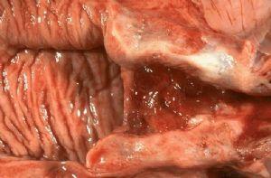 阴道解剖图