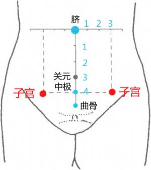 经外奇穴——子宫穴的位置